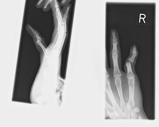 脱臼 小指 びふぉ~