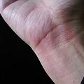 Photos: 0043-a-burn-on-my-right-wrist